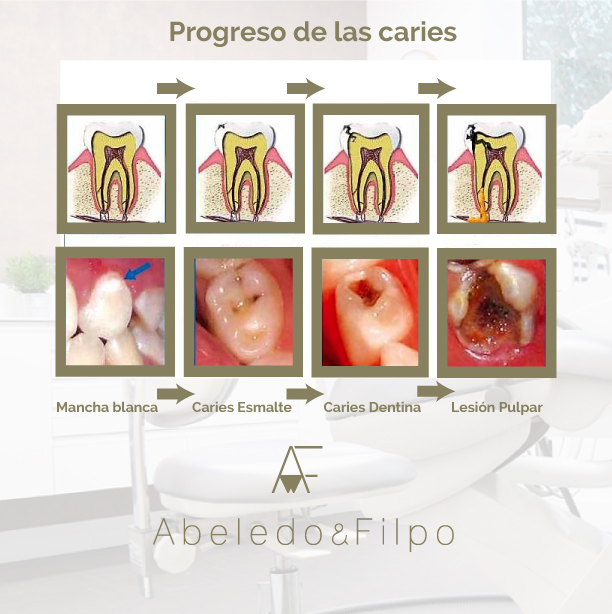diferentes estadios caries